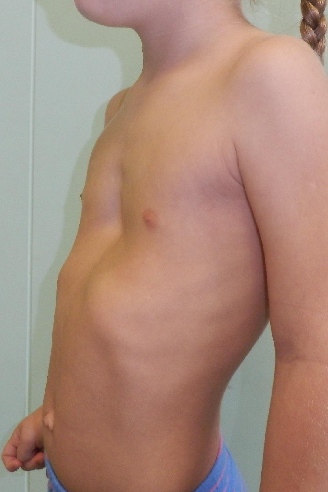 Формы грудной клетки человека. Форма грудной клетки