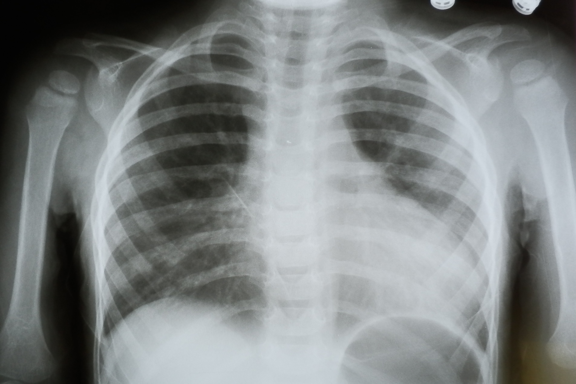 Фото рентгена грудной клетки ребенка